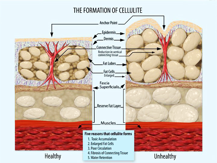 Formation_of_Cellulite